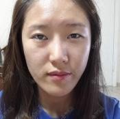 我是韩国原辰医院下巴截骨术亲身经历者,下巴前移后脸型变好了