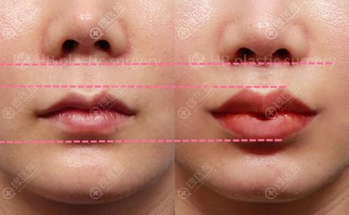 韩国HB整形李炫直唇部整形案例对比图