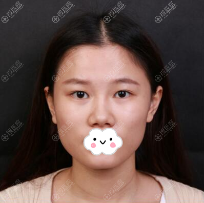 不满自己的眼睛鼻子,我打算做整形手术