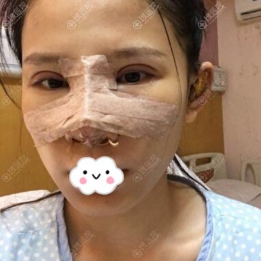 切开双眼皮开眼角+耳软骨隆鼻术后第二天
