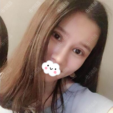 深圳美莱陈磊双眼皮隆鼻术后半年效果图