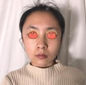 北京丰科星范医美做面部线雕实力见证,表扬我亲爱的暖叔吉光宇