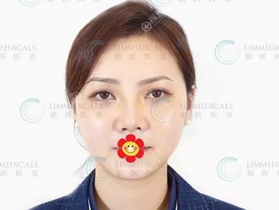 做完假体隆鼻4天恢复图片