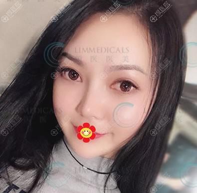 北京领医崔相平隆鼻案例效果