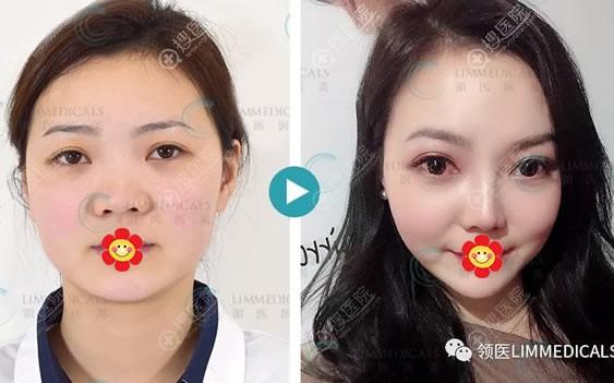 北京领医做隆鼻案例效果怎么样