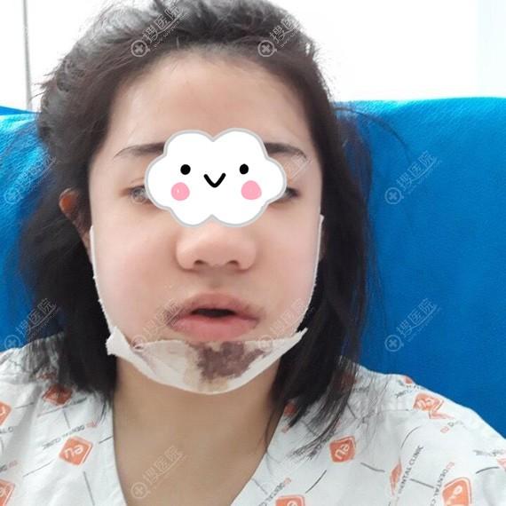到韩国EU做颌面整形术后头天脸部浮肿