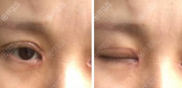 开眼角手术后眼睛出现疤痕增生