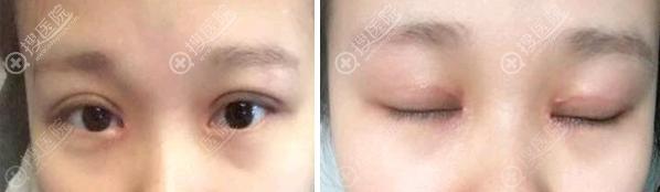深圳鹏程吕美琪开眼角疤痕修复术后半个月效果图