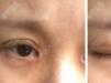 全切开眼角出现疤痕增生,幸好深圳鹏程吕美琪帮我做眼修复手术