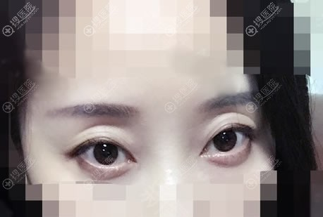 在北京京韩整形做双眼皮前