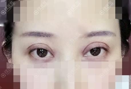 北京京韩刚做完双眼皮的图片
