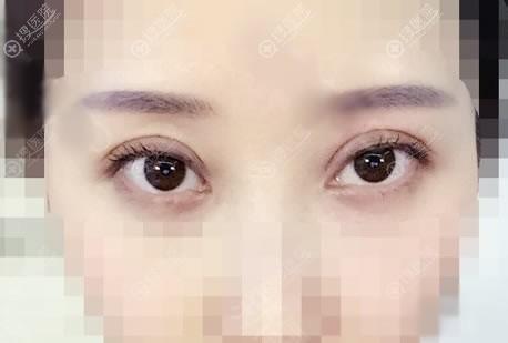 北京京韩任冲双眼皮案例7天效果