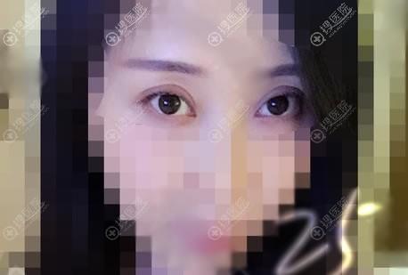 北京京韩整形双眼皮案例15天效果