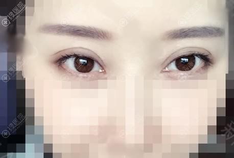 北京京韩任冲院长做双眼皮案例