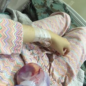 术后医院病床上休息