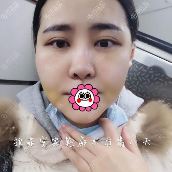 韩国拉菲安面部轮廓术后恢复八天效果