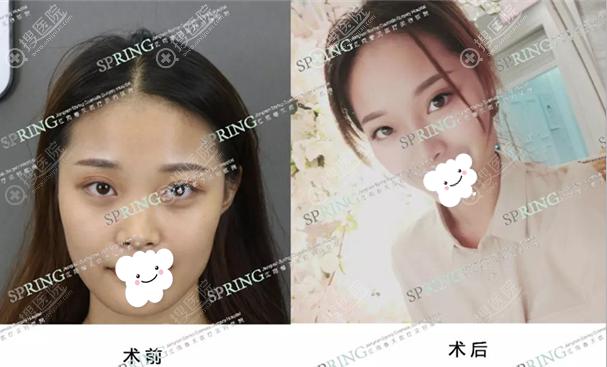 深圳江南阳光罗志敏隆鼻案例效果展示