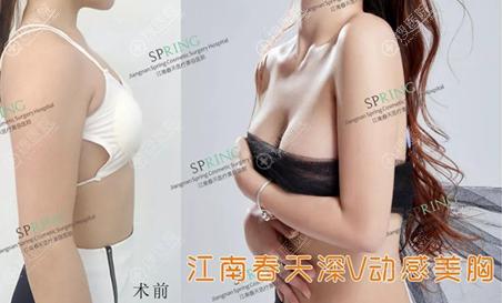 深圳江南阳光李钢丰胸案例效果图