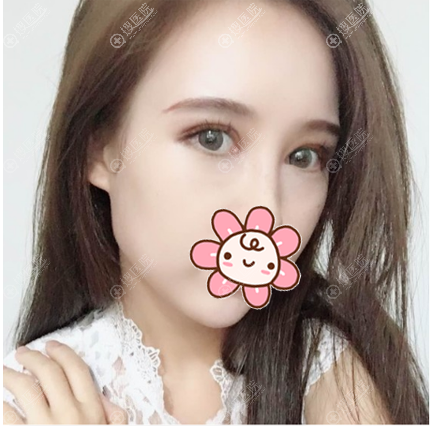 找上海华美张朋做完双眼皮修复半个月了