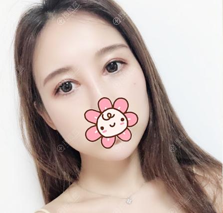 上海华美张朋医生做双眼皮修复怎么样