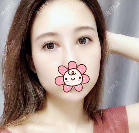 上海华美张朋医生做的双眼皮修复真人案例