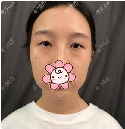 在上海华美做双眼皮修复术前照片