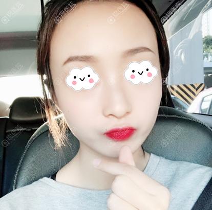 找西安高一生赵阳莉医生做完面部线雕40天的图片