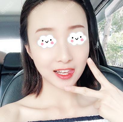 西安高一生赵阳莉线雕案例告诉你西安线雕哪家好
