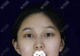 用我的下颌角整形亲身经历告诉你上海仁爱医院刘先超磨骨怎么样