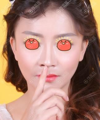 刘彦军的鼻子案例图片