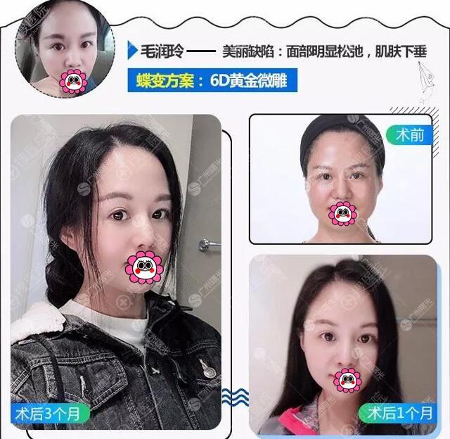广州曙光全面部6D微雕对比效果