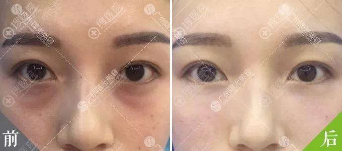 广州曙光脂肪型祛眼袋对比效果