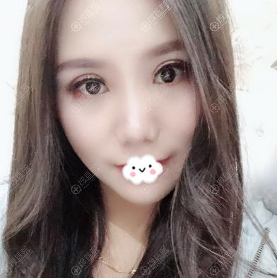 上海玫瑰双眼皮修复案例15天效果图