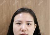 用我的亲身经历告诉你上海玫瑰邹功伟做双眼皮失败修复怎么样