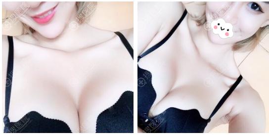 苏州紫馨汪涌医生做的自体脂肪丰胸案例