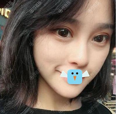 深圳联合丽格双眼皮丰下巴术后一个月恢复照片