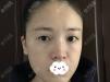 快进来看看我在杭州薇琳整形医院找路则章做的双眼皮效果好不好