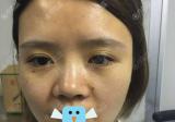 看了同学在深圳仁安雅做的双眼皮,我找苗春来做了鼻综合手术