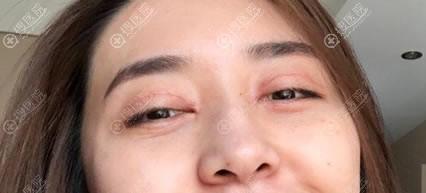 做完眼袋和双眼皮手术15天后