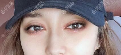 北京悦然医美做双眼皮和祛眼袋案例