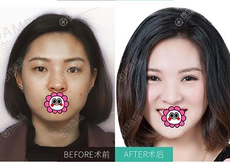 广州画美双眼皮案例对比