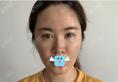 在深圳希思找石东文做了微创除皱术,分享拉皮手术术后13天图片