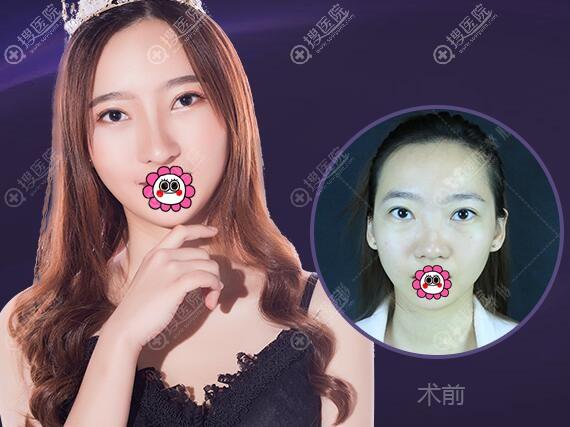 广州韩妃沈绍勇鼻综合效果对比图