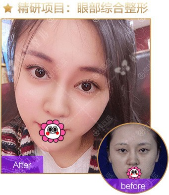 广州韩妃李光琴眼综合案例对比图
