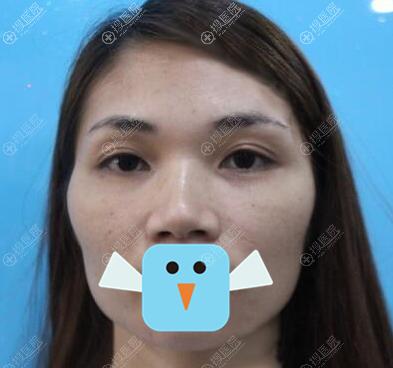 术前太阳穴脸颊凹陷颧骨突出,脸型不好看