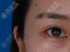眼皮松弛,我慕名找了深圳京韩兰茂梵美郭尚琴给我做双眼皮手术