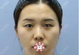 上个月去长春中研找刘晓吉做完双眼皮开眼角后得了张整形价格表