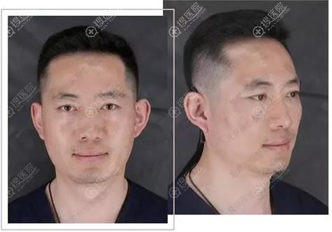 北京丽都文平邦医生做隆鼻前