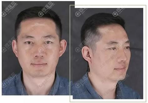 北京丽都文平邦做隆鼻7天后