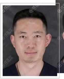北京丽都文平邦主任竟然是吴玉家做的鼻子案例,揭晓效果怎么样
